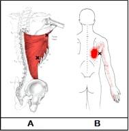 痛み 広背筋 背中がつる?!その「背中が痛い」原因とは|背中の痛み対処