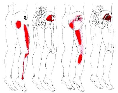 筋筋膜性疼痛症候群の鑑別診断 THE DIAGNOSIS AND TR... 筋・筋膜性疼痛症候